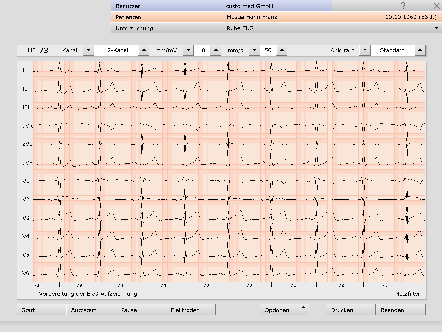 Ruhe-EKG in custo diagnostic